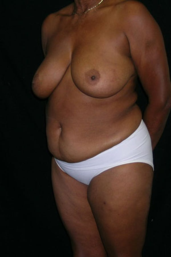 Mommy Makeover Gallery - Patient 23534017 - Image 3