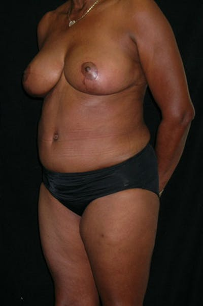 Mommy Makeover Gallery - Patient 23534017 - Image 4