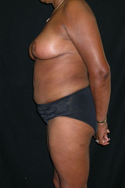 Mommy Makeover Gallery - Patient 23534017 - Image 6