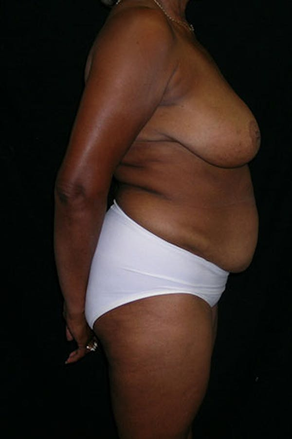 Mommy Makeover Gallery - Patient 23534017 - Image 7