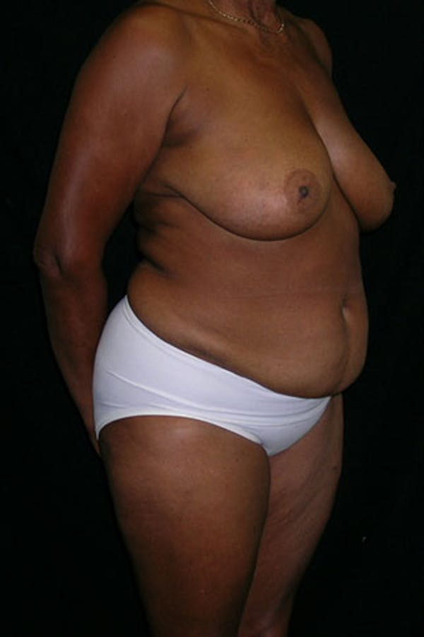 Mommy Makeover Gallery - Patient 23534017 - Image 9