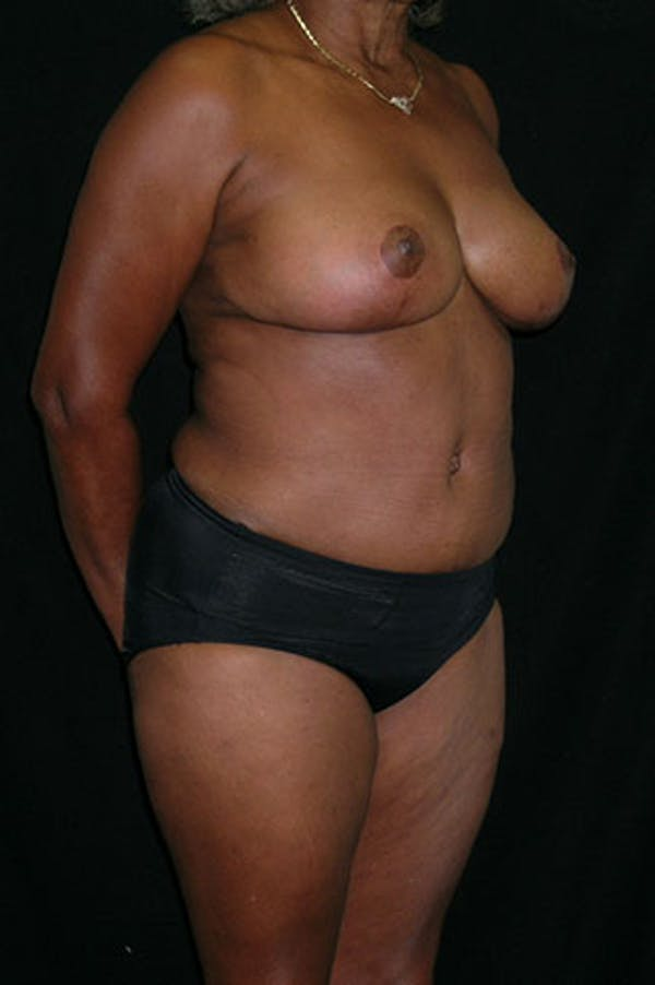 Mommy Makeover Gallery - Patient 23534017 - Image 10