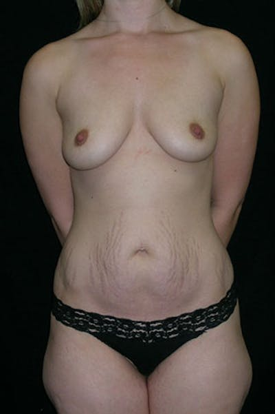 Mommy Makeover Gallery - Patient 23534019 - Image 1