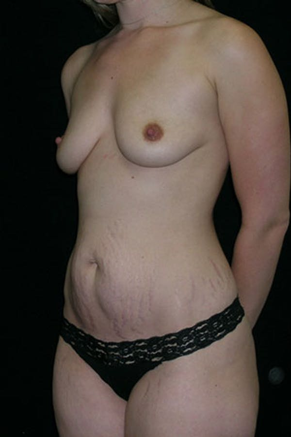 Mommy Makeover Gallery - Patient 23534019 - Image 3