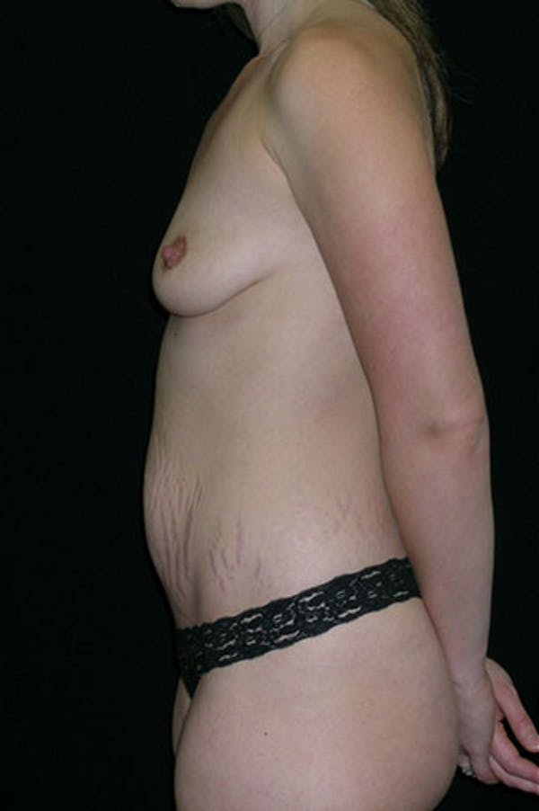 Mommy Makeover Gallery - Patient 23534019 - Image 5