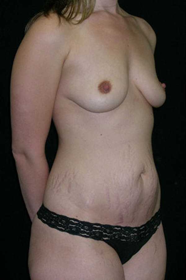 Mommy Makeover Gallery - Patient 23534019 - Image 9