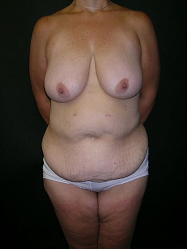 Mommy Makeover Gallery - Patient 23534028 - Image 3