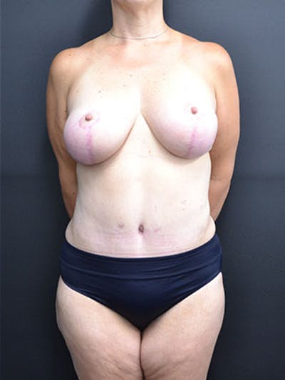 Mommy Makeover Gallery - Patient 23534028 - Image 4