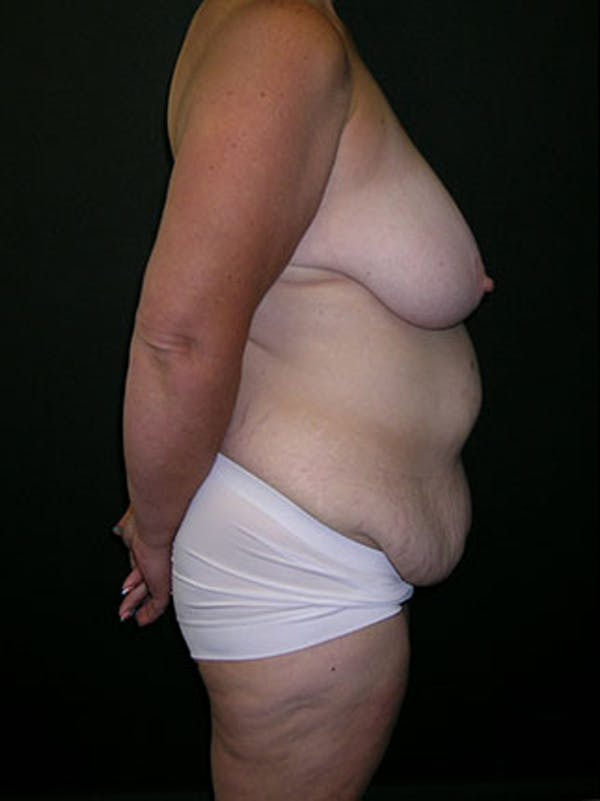 Mommy Makeover Gallery - Patient 23534028 - Image 5