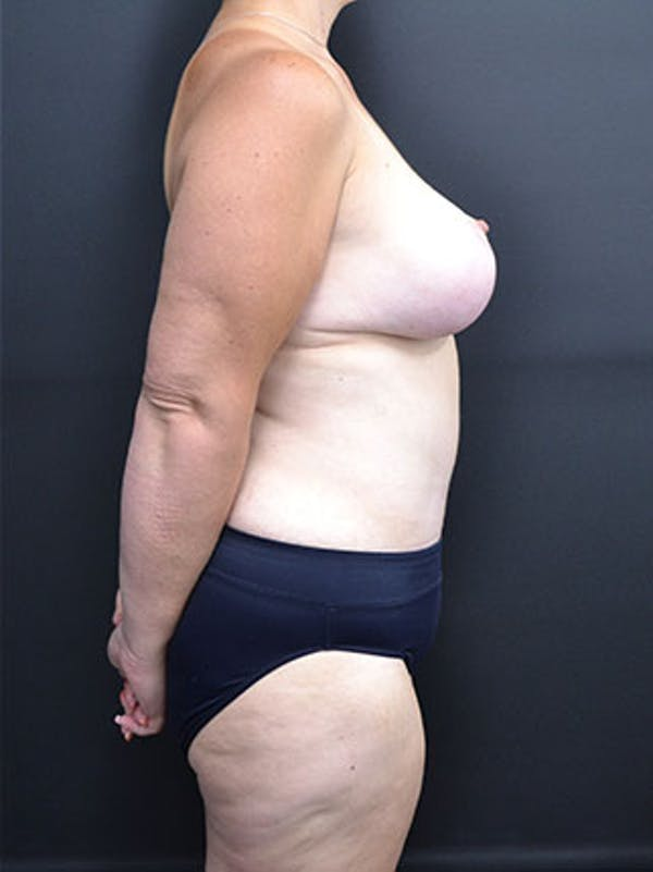 Mommy Makeover Gallery - Patient 23534028 - Image 6