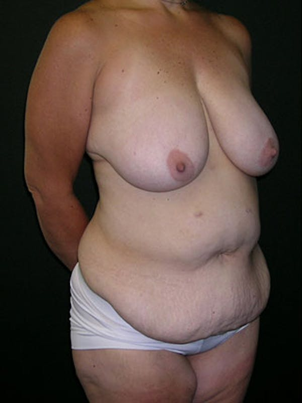 Mommy Makeover Gallery - Patient 23534028 - Image 7