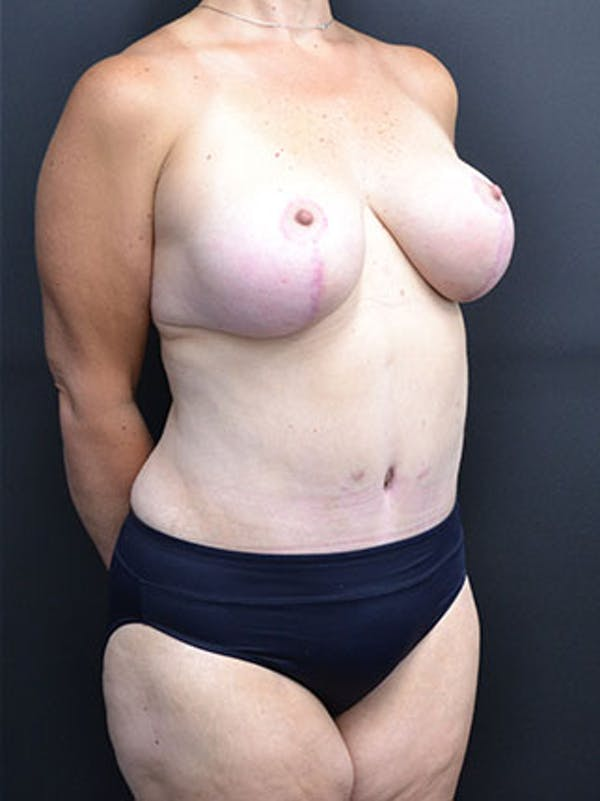 Mommy Makeover Gallery - Patient 23534028 - Image 8