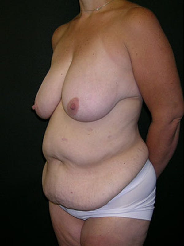 Mommy Makeover Gallery - Patient 23534028 - Image 9