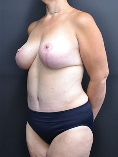 Mommy Makeover Gallery - Patient 23534028 - Image 10