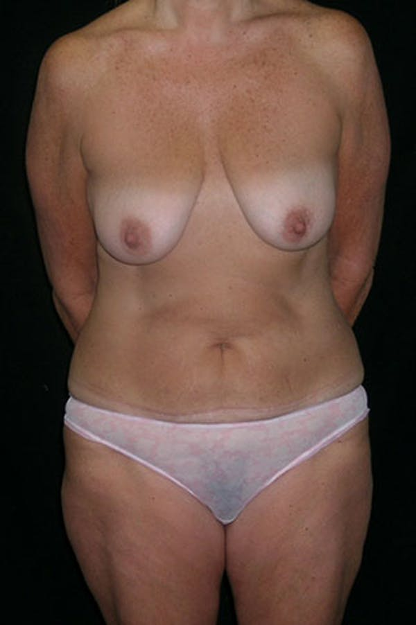 Mommy Makeover Gallery - Patient 23534031 - Image 1