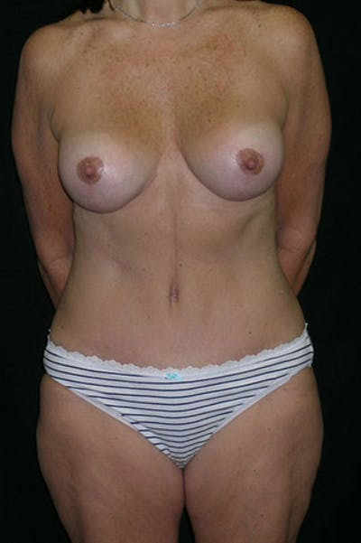 Mommy Makeover Gallery - Patient 23534031 - Image 2