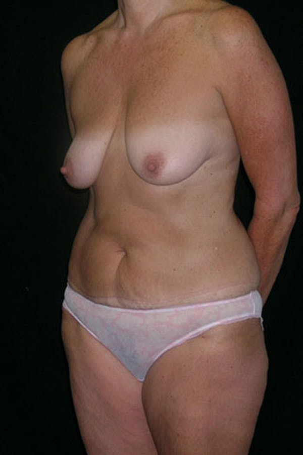 Mommy Makeover Gallery - Patient 23534031 - Image 3