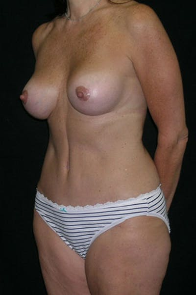 Mommy Makeover Gallery - Patient 23534031 - Image 4