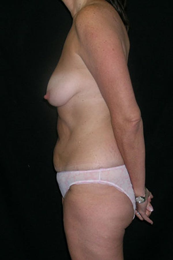 Mommy Makeover Gallery - Patient 23534031 - Image 5
