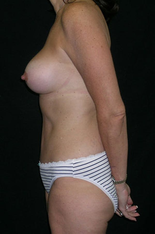 Mommy Makeover Gallery - Patient 23534031 - Image 6