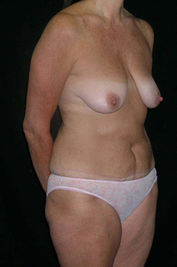 Mommy Makeover Gallery - Patient 23534031 - Image 7