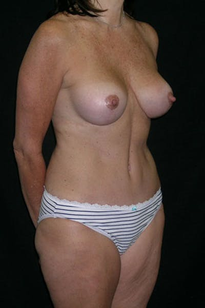 Mommy Makeover Gallery - Patient 23534031 - Image 8