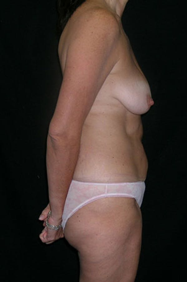 Mommy Makeover Gallery - Patient 23534031 - Image 9