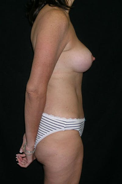Mommy Makeover Gallery - Patient 23534031 - Image 10
