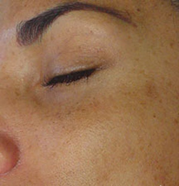 HydraFacial Gallery - Patient 61447365 - Image 1