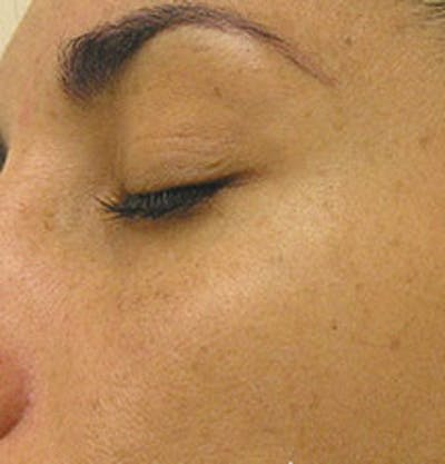 HydraFacial Gallery - Patient 61447365 - Image 2
