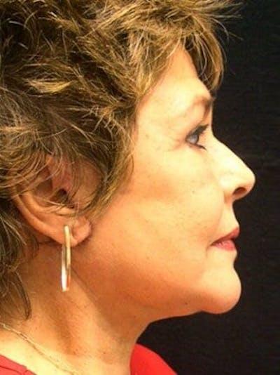 Facelift & Necklift Gallery - Patient 25139311 - Image 2