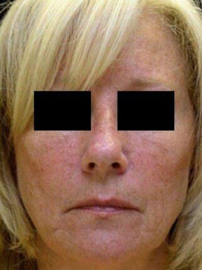 Facelift & Necklift Gallery - Patient 25139346 - Image 1