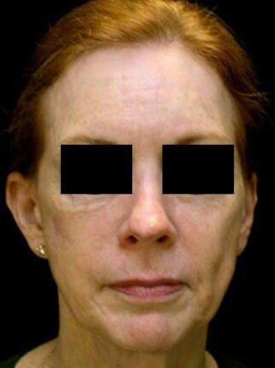 Facelift & Necklift Gallery - Patient 25139372 - Image 1