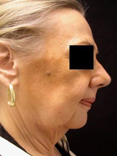 Facelift & Necklift Gallery - Patient 25139378 - Image 1