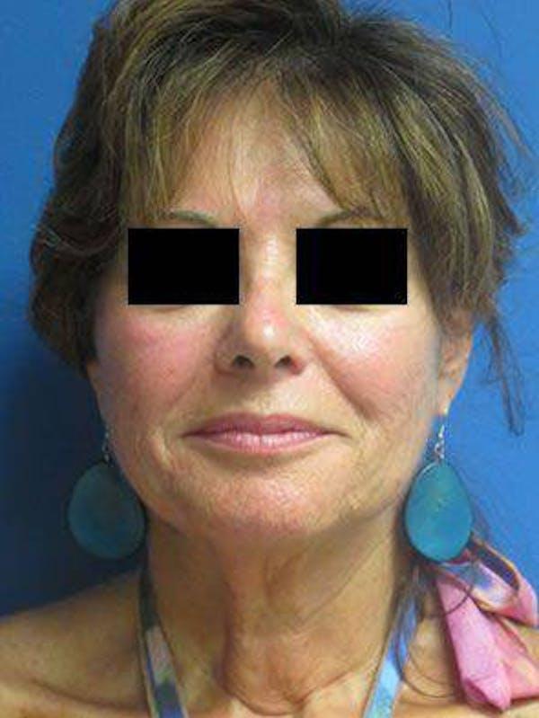 Facelift & Necklift Gallery - Patient 25139381 - Image 1