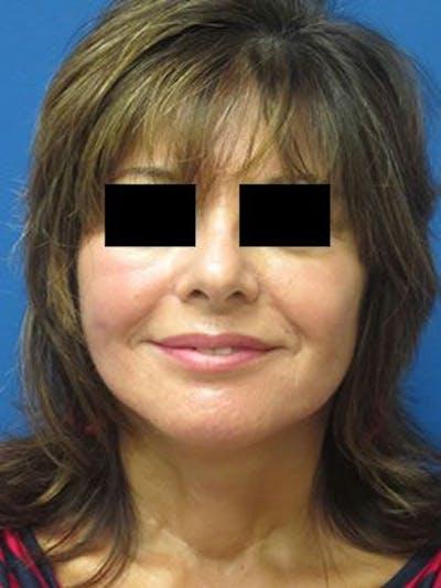 Facelift & Necklift Gallery - Patient 25139381 - Image 2