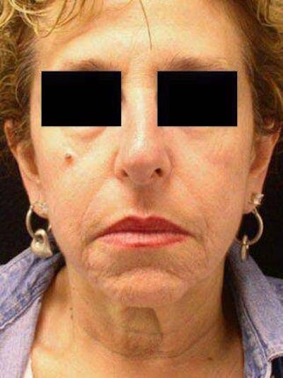 Facelift & Necklift Gallery - Patient 25139386 - Image 1