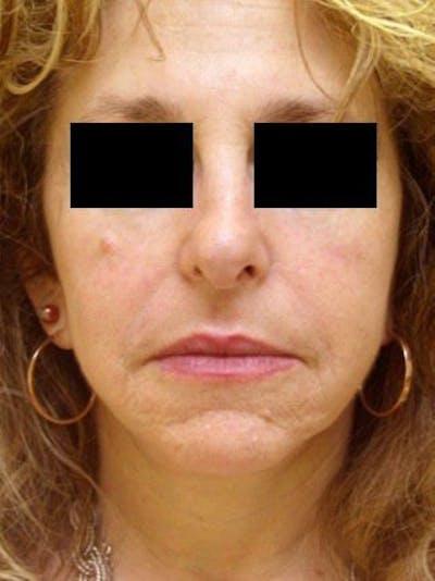 Facelift & Necklift Gallery - Patient 25139386 - Image 2