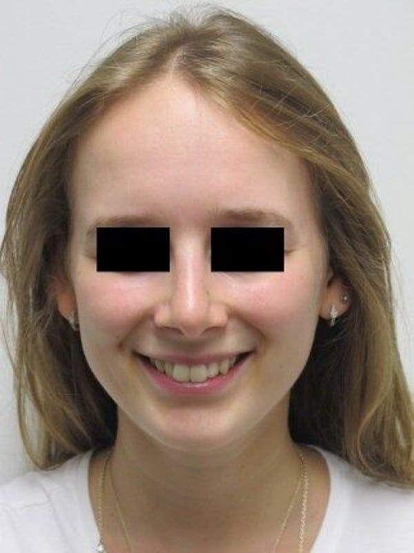 Rhinoplasty Gallery - Patient 25139669 - Image 2