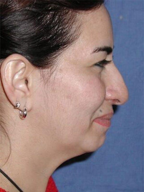 Rhinoplasty Gallery - Patient 25139673 - Image 1