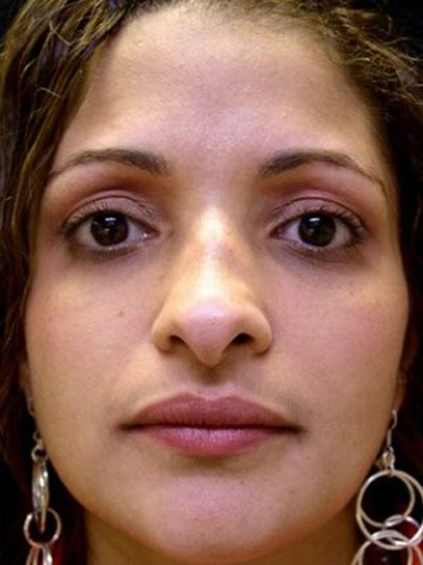 Rhinoplasty Gallery - Patient 25139706 - Image 1