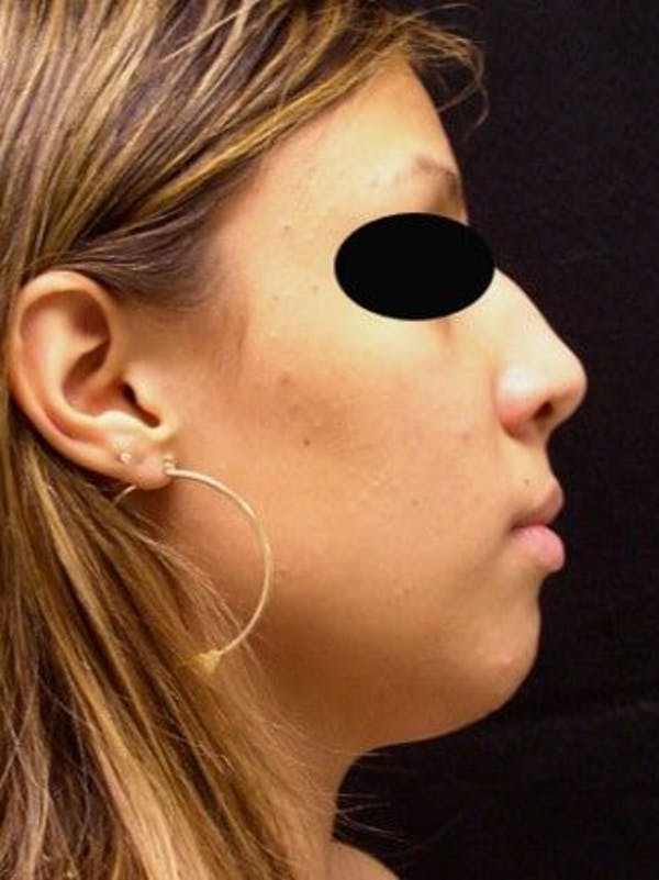 Rhinoplasty Gallery - Patient 25139757 - Image 1