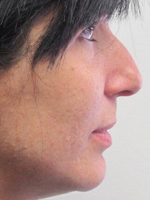 Rhinoplasty Gallery - Patient 25139789 - Image 1