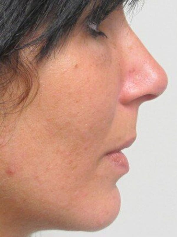 Rhinoplasty Gallery - Patient 25139789 - Image 2