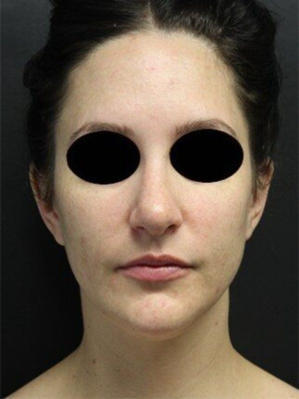 Laser Resurfacing Gallery - Patient 25139828 - Image 1