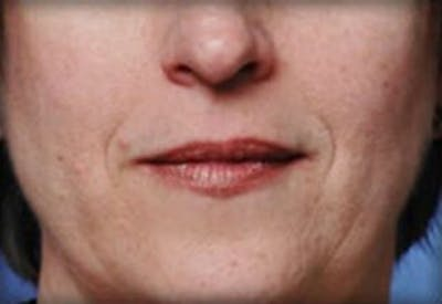 Injectables Gallery - Patient 25274063 - Image 1