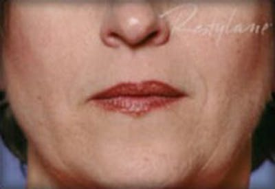 Injectables Gallery - Patient 25274063 - Image 2