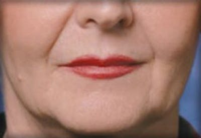 Injectables Gallery - Patient 25274064 - Image 1
