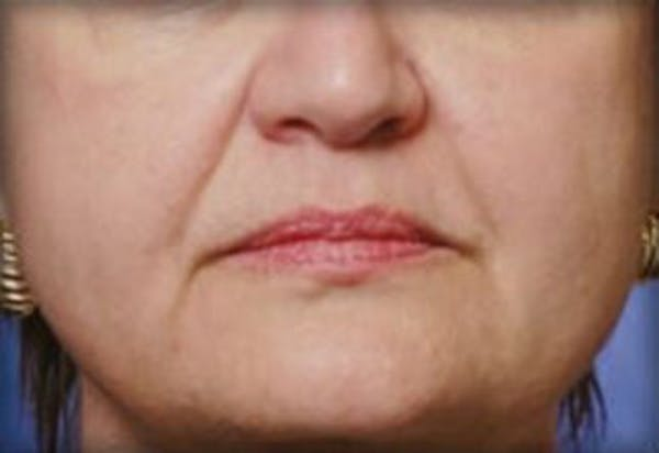 Injectables Gallery - Patient 25274069 - Image 1