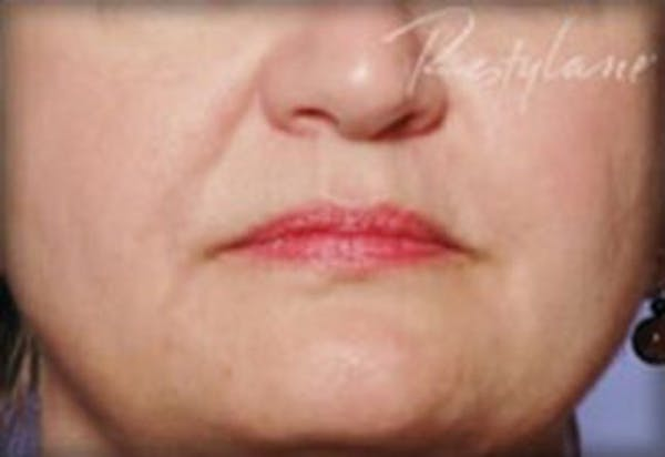 Injectables Gallery - Patient 25274069 - Image 2